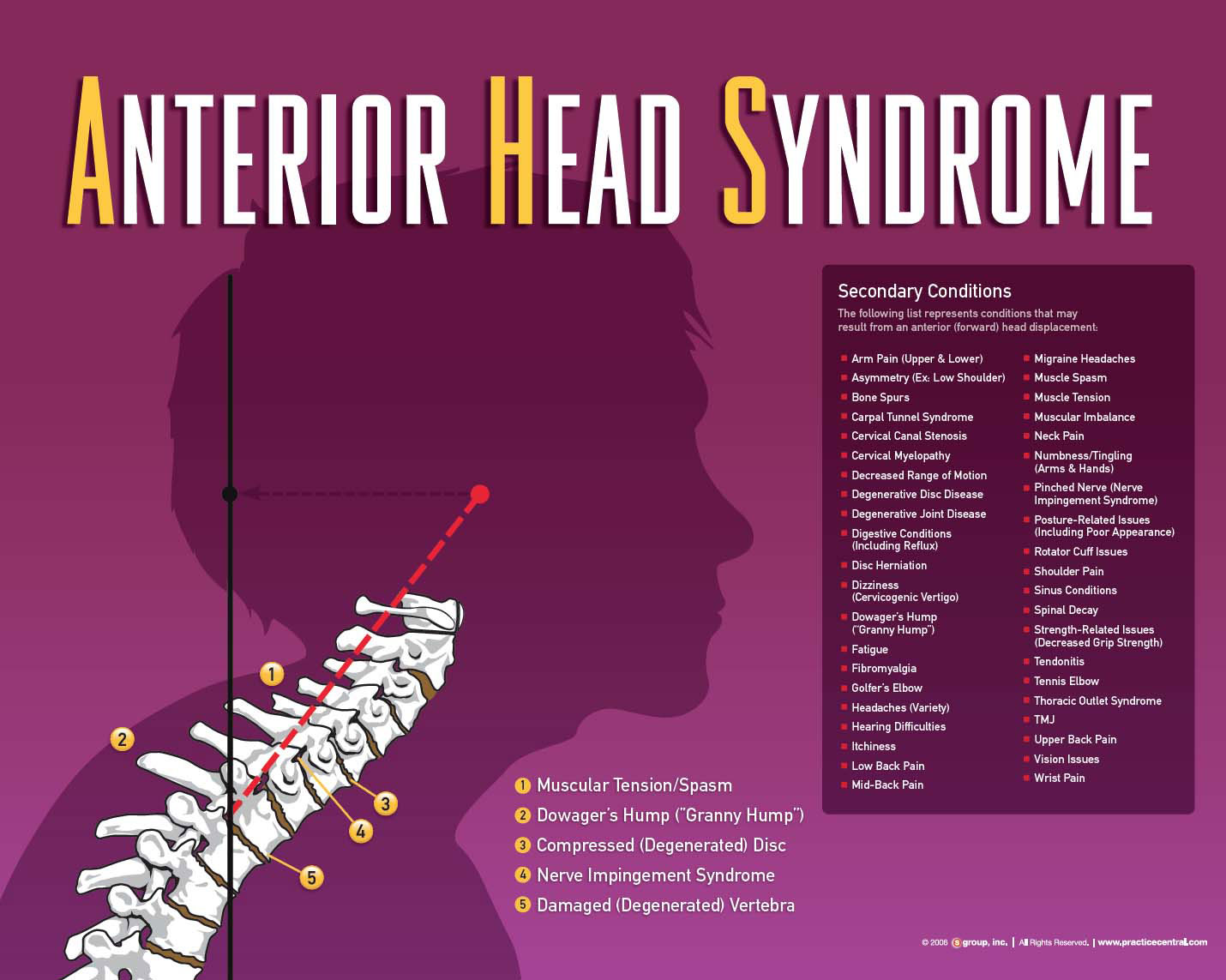Anterior Head Syndrome facts